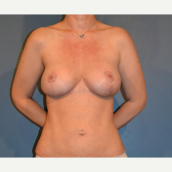 25-34 year old woman treated with Breast Fat Transfer after 3445871