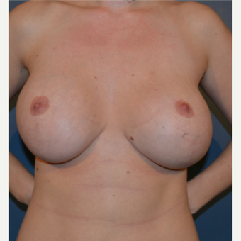 25-34 year old woman treated with Breast Fat Transfer before 3445871