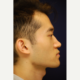 18-24 year old man treated with Rhinoplasty before 3688881