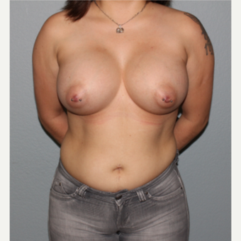 25-34 year old woman treated with Breast Augmentation after 3332643