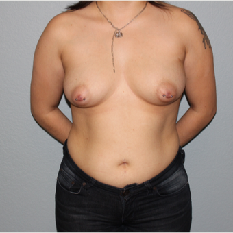 25-34 year old woman treated with Breast Augmentation before 3332643