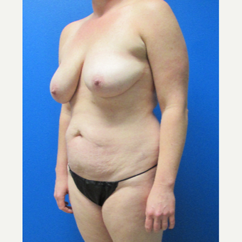36 Year old woman treated with Mommy Makeover before 3702795