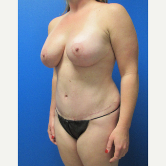 36 Year old woman treated with Mommy Makeover after 3702795