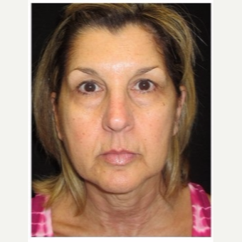 55-64 year old woman treated with Ultherapy before 3179866