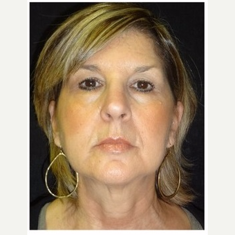 55-64 year old woman treated with Ultherapy after 3179866