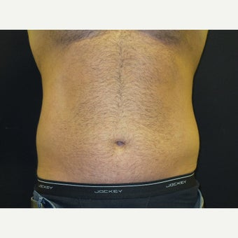35-44 year old man treated with CoolSculpting