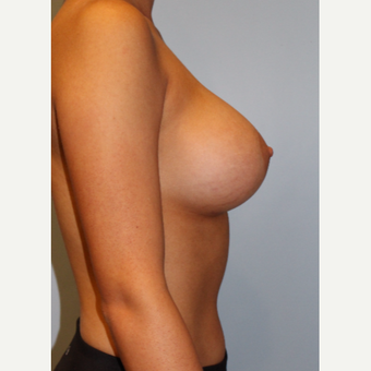 25-34 year old woman treated with Breast Augmentation after 3754103