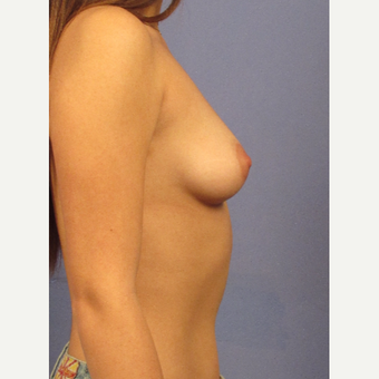 25-34 year old woman treated with Breast Augmentation before 3754103