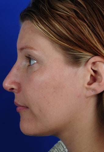 Revision Rhinoplasty 611478