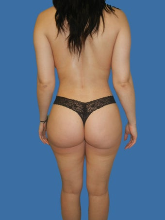 Butt Augmentation after 1209366