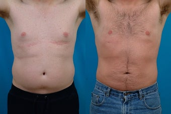 40-year-old man treated with Male Breast Reduction. before 3299573