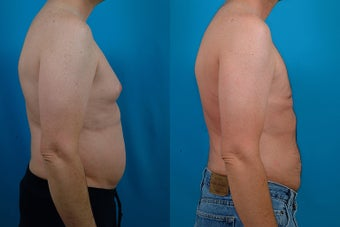 40-year-old man treated with Male Breast Reduction. after 3299573