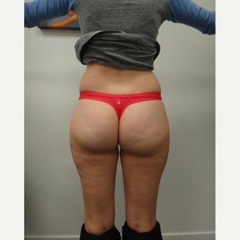 25-34 year old woman treated with Liposonix after 1554063