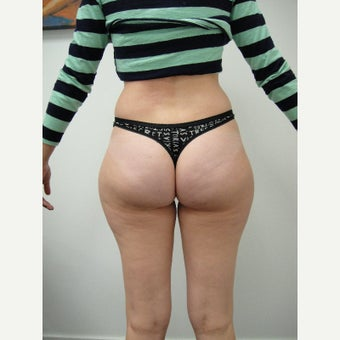 25-34 year old woman treated with Liposonix before 1554063