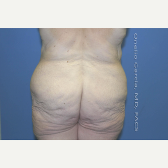 "45-54 year old woman treated with Body Lift-Circumferential ""Belt"" lipectomy + Vaser Liposuction before 3041536"