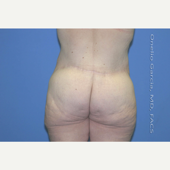"45-54 year old woman treated with Body Lift-Circumferential ""Belt"" lipectomy + Vaser Liposuction after 3041536"