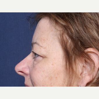 55-64 year old woman treated with Eyelid Surgery (view 2 of 2) before 3180538