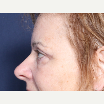 55-64 year old woman treated with Eyelid Surgery (view 2 of 2) after 3180538