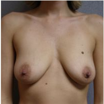 25-34 year old woman treated with Breast Lift with Implants before 3122408