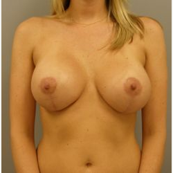 25-34 year old woman treated with Breast Lift with Implants after 3122408