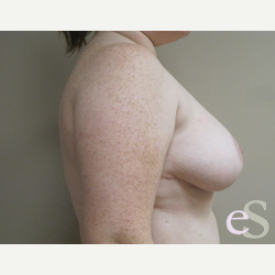 Breast Reduction after 3373516