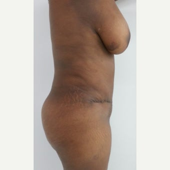 35-44 year old woman treated with Tummy Tuck 1901943