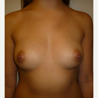 25-34 year old woman with Silicone Smooth Ultra High Profile Breast Augmentation before 1970139