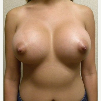 25-34 year old woman with Silicone Smooth Ultra High Profile Breast Augmentation after 1970139