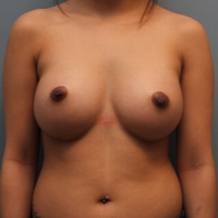 27 year old woman treated with Inspira Gel Breast Implants after 3390834