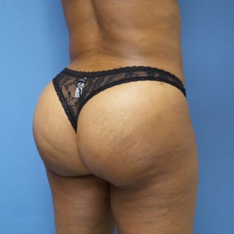 45-54 year old woman treated with Brazilian Butt Lift after 2181112