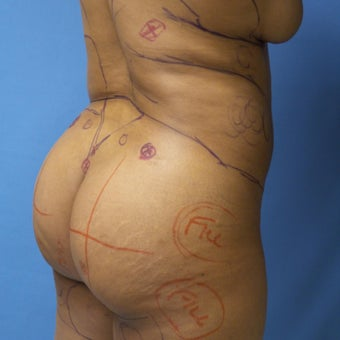 45-54 year old woman treated with Brazilian Butt Lift before 2181112