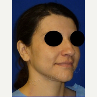18-24 year old woman treated with Rhinoplasty before 3356286