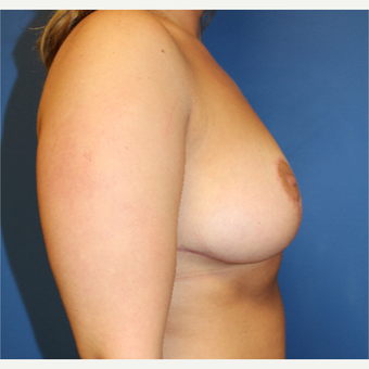 25-34 year old woman treated with Breast Reduction after 3765291