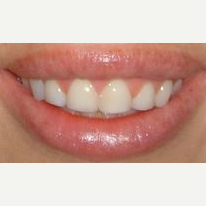 35-44 year old woman treated with Smile Makeover after 3026679