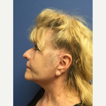 65-74 year old woman treated with Facelift after 3688766