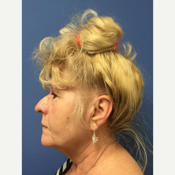 65-74 year old woman treated with Facelift before 3688766