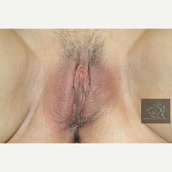 45-54 year old woman treated with Vaginal Rejuvenation after 2804403