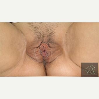 45-54 year old woman treated with Vaginal Rejuvenation before 2804403