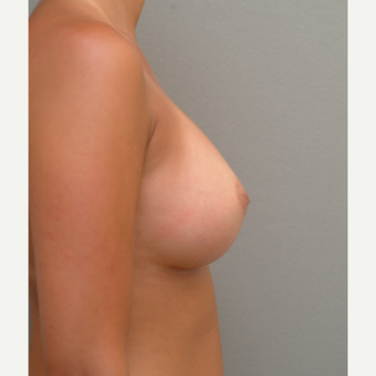 18-24 year old woman treated with Breast Implants after 3741969