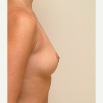 18-24 year old woman treated with Breast Implants before 3741969