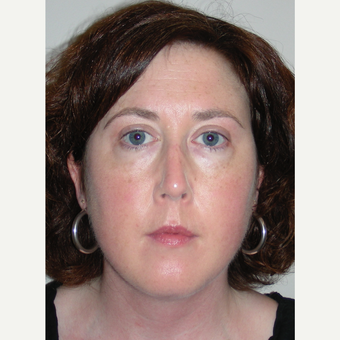 25-34 year old woman treated with Rhinoplasty after 3692080
