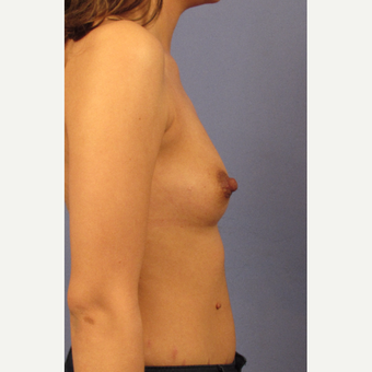 25-34 year old woman treated with Breast Augmentation before 3131818