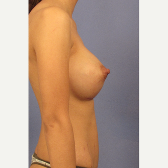 25-34 year old woman treated with Breast Augmentation after 3131818