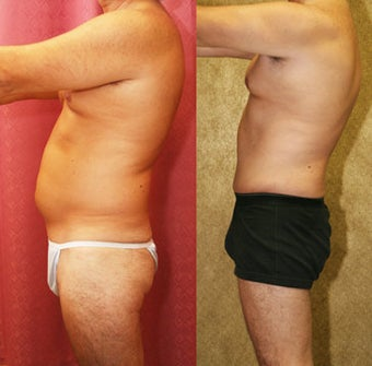 Male abdominoplasty or tummy tuck before 232464