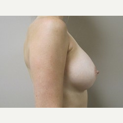 Breast Implants after 3373623