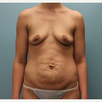 25-34 year old woman treated with Mommy Makeover before 3577096