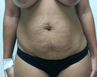 33 year old woman treated with Body Lift before 3228188