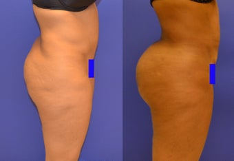 Brazillian Butt Lift and Revision Liposuction (from other doctor) before 1184175