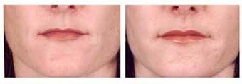 Lip Augmentation with Fat injection before 6435