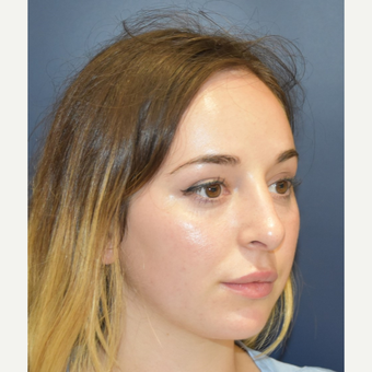 18-24 year old woman treated with Rhinoplasty after 3503444